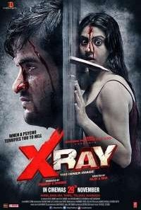 Download X Ray: The Inner Image (2019) Hindi Movie