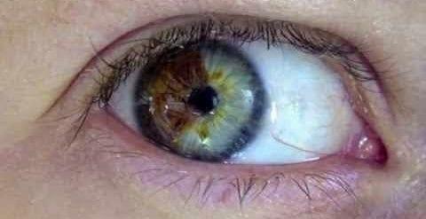 Cambiar el Color de los Ojos BIOKINESIS
