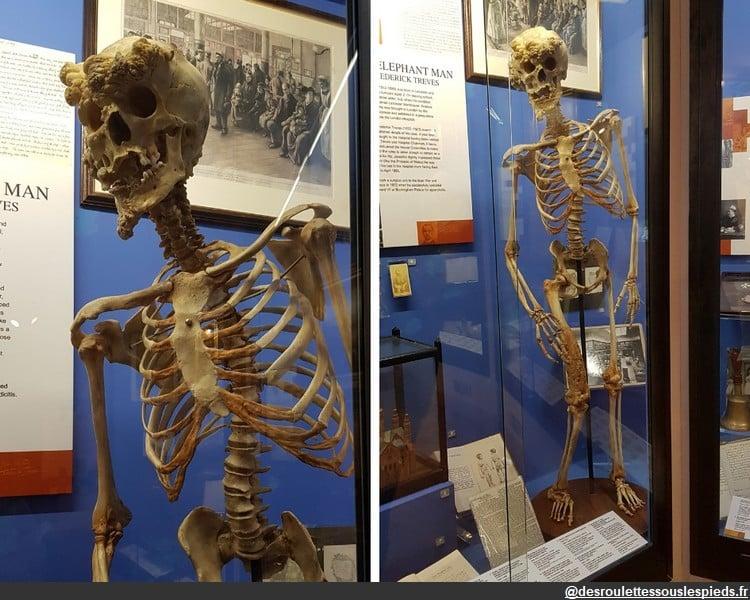 Sur les traces de jack l'éventreur musée du royal london hospital
