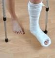 9030174-paziente-con-le-stampelle-con-la-gamba-rotta-nel-cast