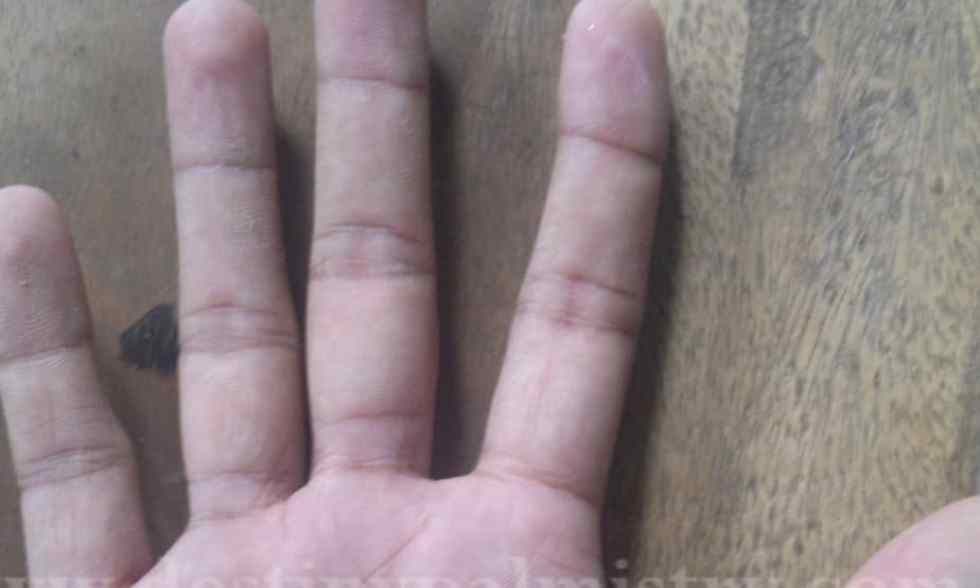 curved finger, Crooked finger of Jupiter, bent index finger, meaning of bent index fingertip