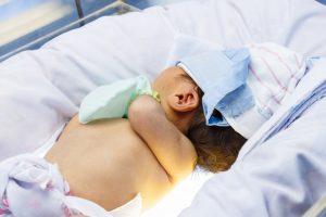 Az újszülöttek fototerápiája