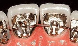 braces as fashion