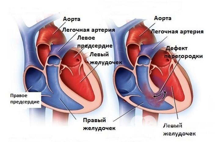 lehetséges-e az ASD-t hipertóniával kezelni)