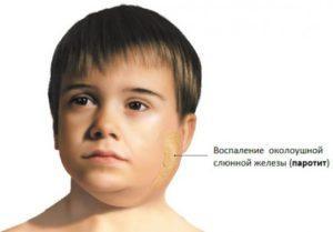 Паротит у детей: причины появления, лечение и способы профилактики. Симптомы и лечение свинки у детей