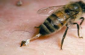 P3K: Sengatan Binatang atau Serangga Beracun