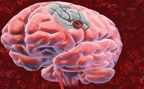O modalitate 100% funcțională de salvare în timpul unui accident vascular cerebral! Sfatul unui profesor chinez.