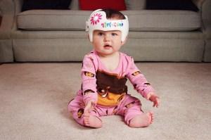 Плагиоцефалия у ребенка: плоская головка — это опасно?