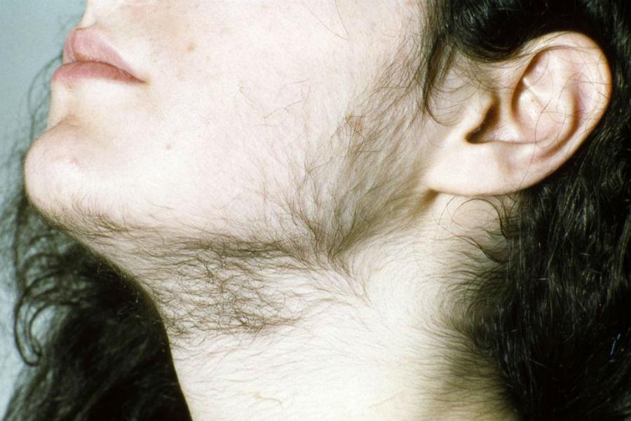 Адреногенитальный синдром: причины, симптомы, лечение
