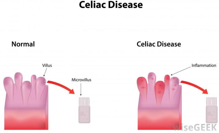 celiac-disease-diagram