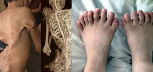 8 Weird and strangest medical conditions that are so rare you won't believe they exist!