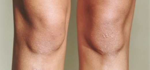 Avoid these actions with your toes to stop hurting your knees
