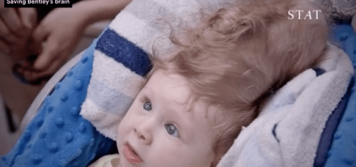 Amazing baby born with brain outside his skull survives with risky surgery