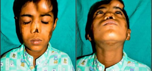 This boy had lost his nose, but doctors recently gave him a new lease of life