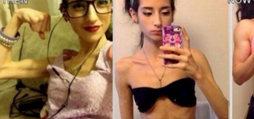Inspiring story of a girl who fought hard against anorexia and this is how she looks now