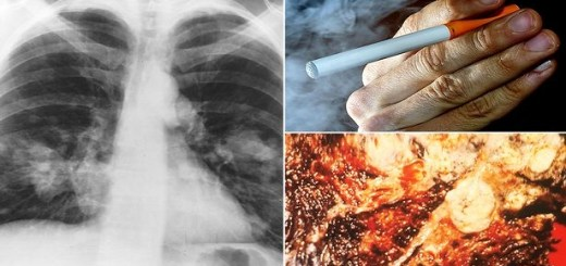 This is the real truth behind E-cigarettes. Look how companies have been fooling you all this while