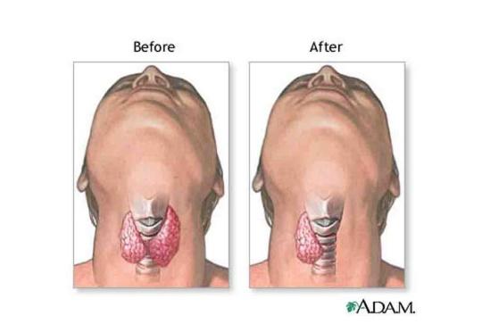 Treatment for Hypothyroidism