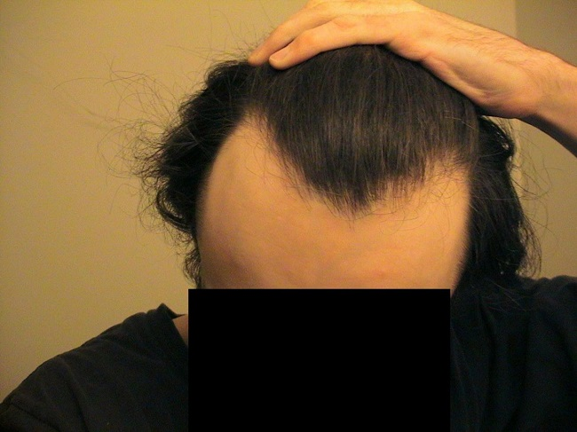 M-Shaped Hairline