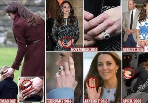 Why does the Duchess of Cambridge wear a Plaster on her hand, is she clumsy?