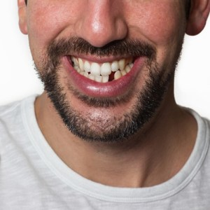how a missing tooth will affect your smile