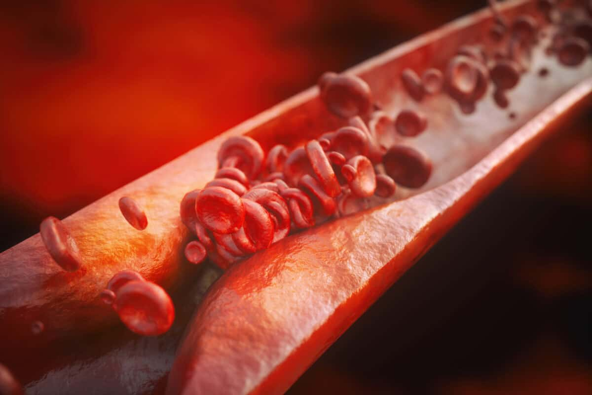 Effects Of Cholesterol Levels: Causes and Symptoms
