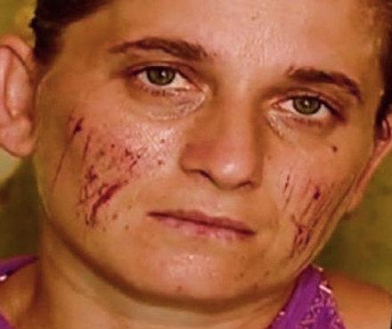 Arveladze_crime_victim_Rustavi-2_Cropped
