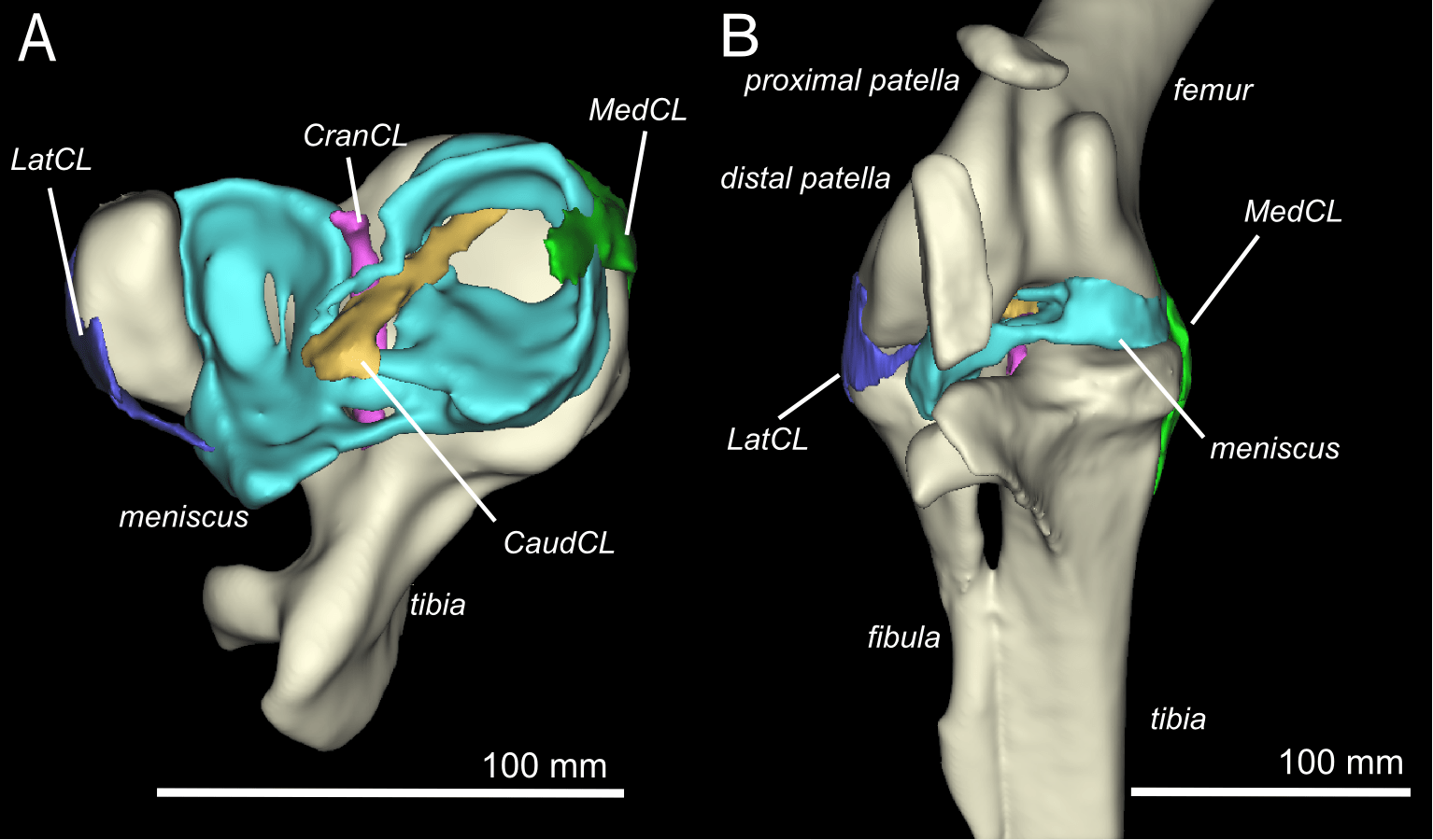 Lateral Femoral Condyle Anatomy