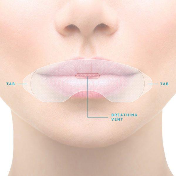 somnifix strips 1 dental hygienists abroad