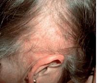 Scarring-Alopecia