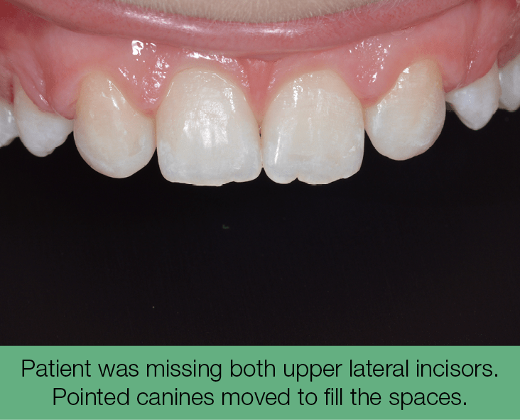 1. Patient was missing both upper lateral incisors. Pointed canines moved to fill the spaces