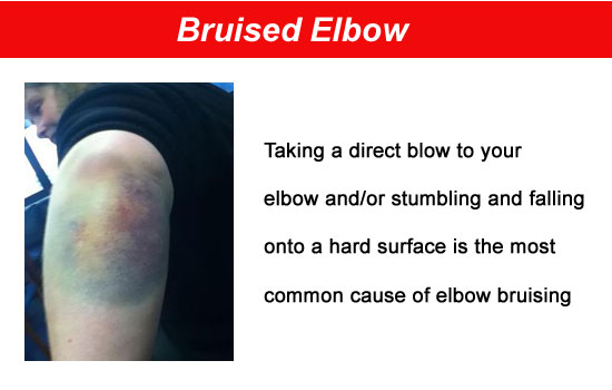 bruised elbow condition