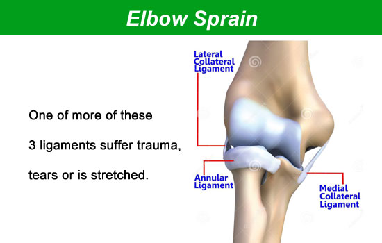 elbow sprain injury
