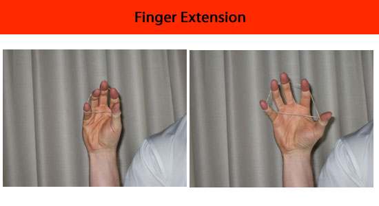 exercise finger extensions