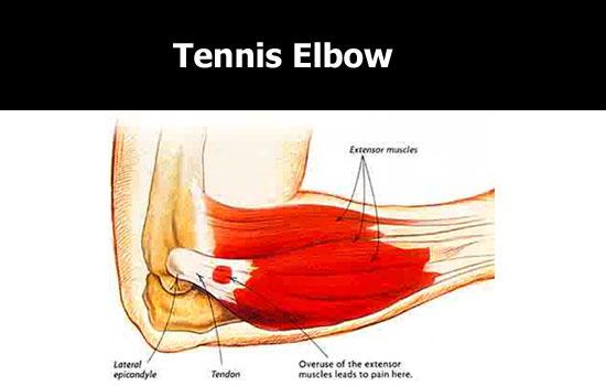 tennis elbow pain area