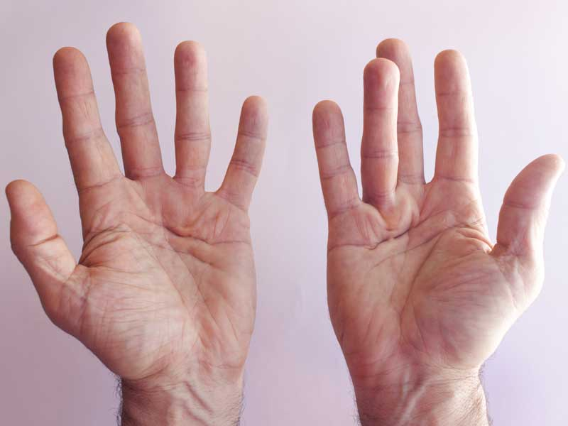 Hands of an man with Dupuytren contracture