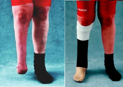 foot-amputation
