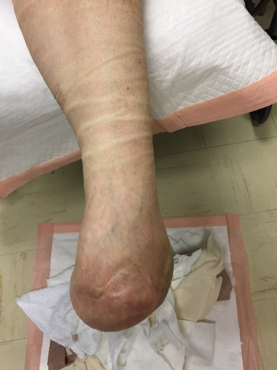 Care by Podiatric Physicians Dramatically Decreases Limb Amputation