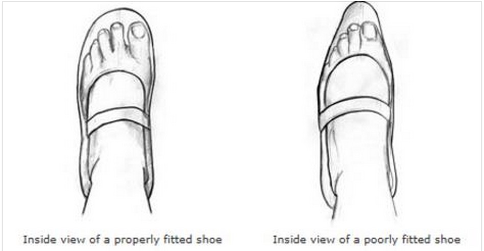 Let's measure what we manage: Assessing plantar pressure can improve diabetic shoe prescription