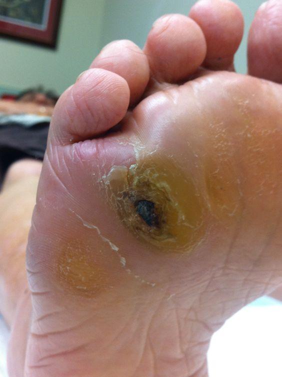 Predictive Factors For Diabetic Foot Ulcers Df Blog