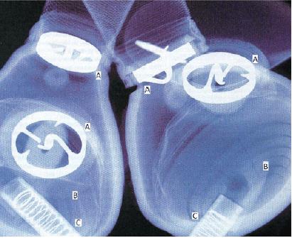 HeartTx-Fig1
