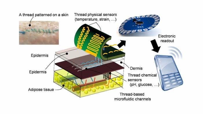 smart-stitches-1