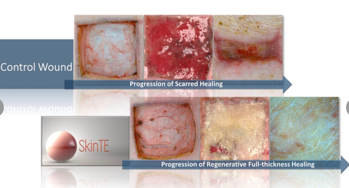 Will SkinTE be the first truly disruptive regenerative technology in wound repair? @PolarityTE #Woundhealing