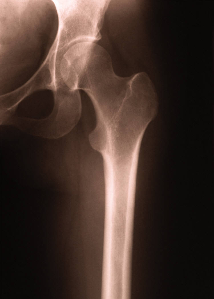 You do NOT want this hip bone to break!
