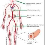 complication du diabète, neuropathie diabétique, nephropathie, rétinopathie, macrovasculaire, microvasculaire
