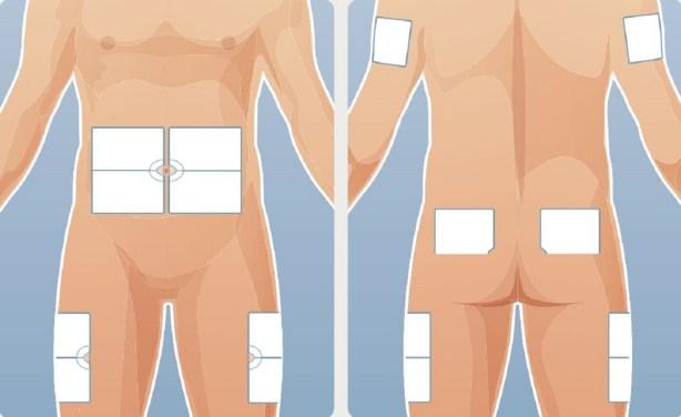 abdomen, cuisses, fesses, insuline
