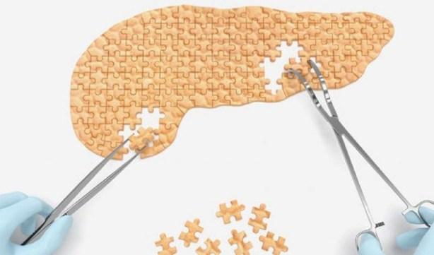 Un pancréas bio-imprimé en 3D qui fonctionnerait normalement sans entraîner la destruction de cellules liées à l'auto-immunité.
