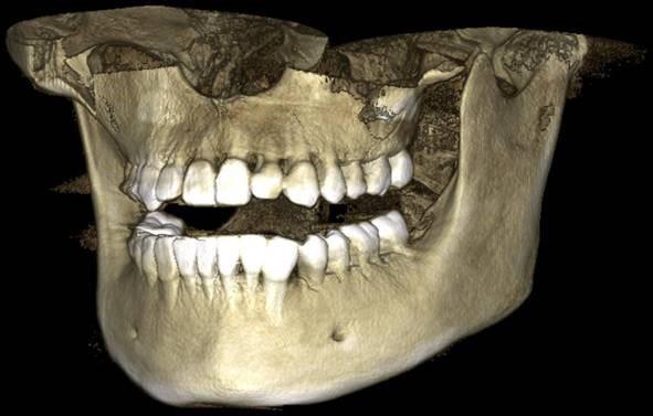 Когда и для чего назначают МРТ челюсти