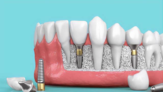 Când este necesar un implant dentar?