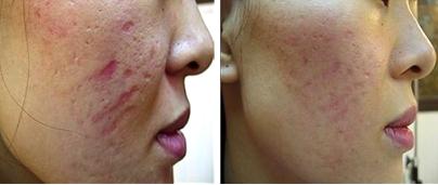 Skin Needling Treatment Results