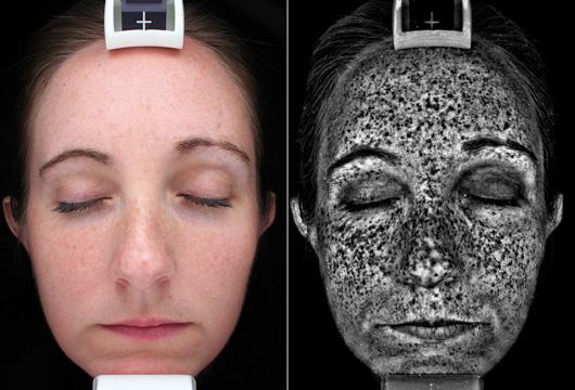 skin scan uv damagex